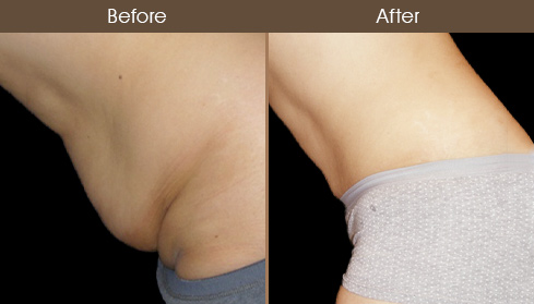 Tummy Tuck Surgery Results Image