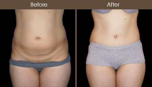 Tummy Tuck Surgery Before And After Image