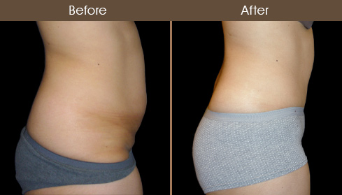 Tummy Tuck Surgery Before & After Image