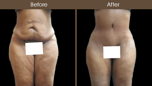 Abdominoplasty Before And After Image