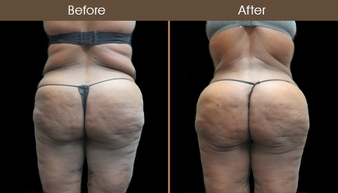 Abdominoplasty Before And After Photo