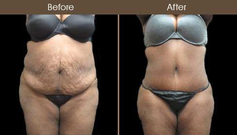 Abdominoplasty Surgery Before And After Image