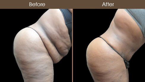 Abdominoplasty Surgery Results Image