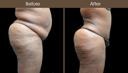 Abdominoplasty Surgery Before & After Image