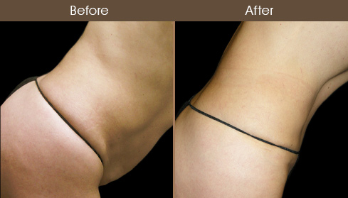 Tummy Tuck Results Photo