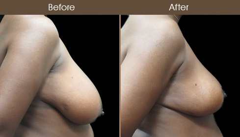 Breast Reduction Surgery Before & After