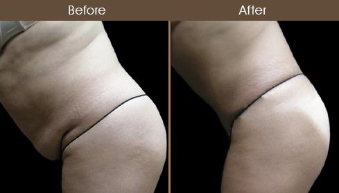 Tummy Tuck Surgery Results Photo