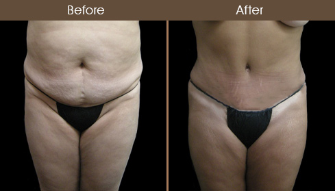 Tummy Tuck Surgery Before And After Photo