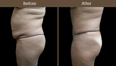 Tummy Tuck Surgery Before & After Photo