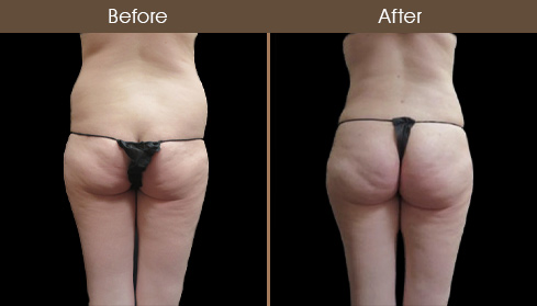 Abdominoplasty Surgery Before & After Photo