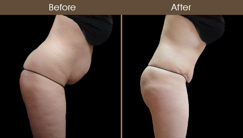 Abdominoplasty Surgery Before And After Photo