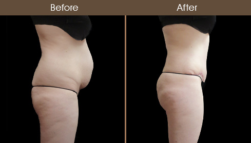Abdominoplasty Results Photo