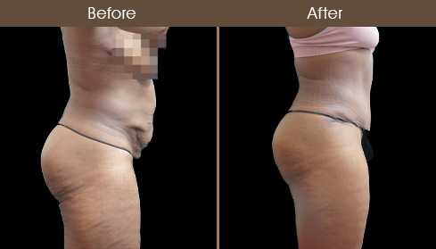 Before And After Tummy Tuck In NYC
