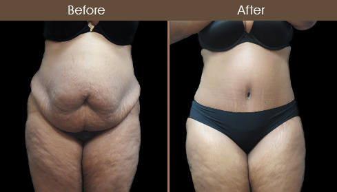 Abdominoplasty Surgery Results Photo