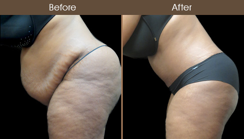 Before And After Abdominoplasty Surgery In NYC
