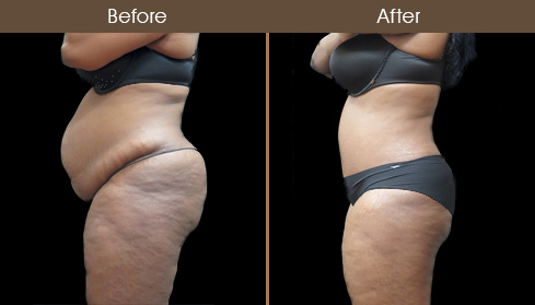 Before & After Abdominoplasty In NYC