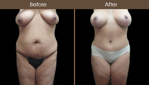 Before & After Abdominoplasty Surgery In NYC