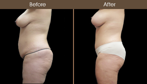 Before And After Tummy Tuck Surgery In New York