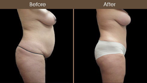 Before & After Tummy Tuck In New York