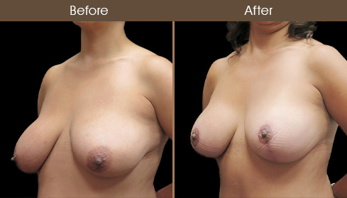 Breast Lift With Augmentation Results