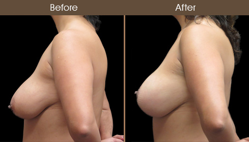 Before & After Breast Lift With Augmentation
