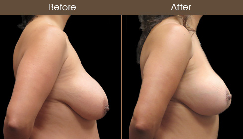 Before And After Breast Lift With Augmentation