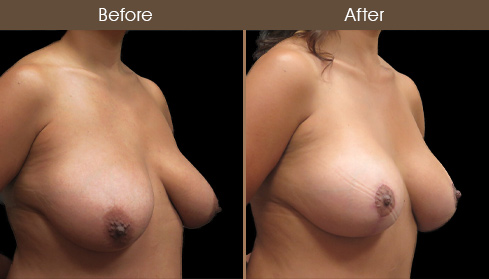 Breast Lift With Breast Augmentation Before & After