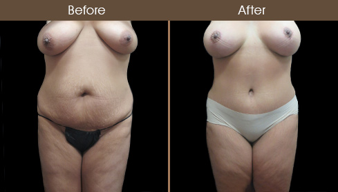 NYC Mommy Makeover Surgery Results