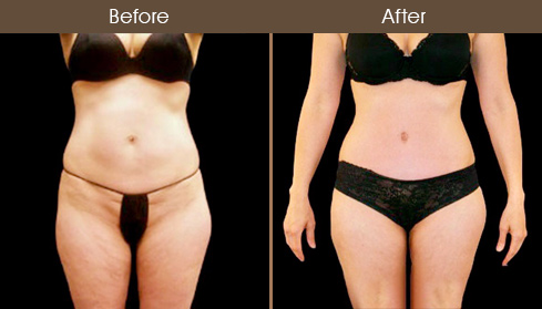 Before & After Abdominoplasty In New York
