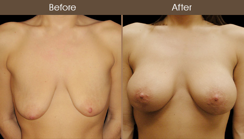 Breast Lift With Implants Before And After