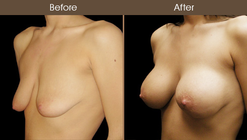 Breast Lift With Implants Before & After