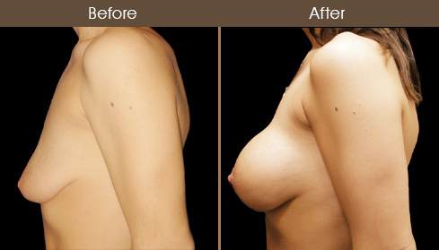 Breast Lift With Implants Results