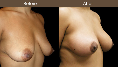 Before & After Breast Lift With Implants