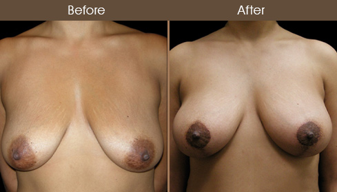 Before And After Breast Lift With Implants