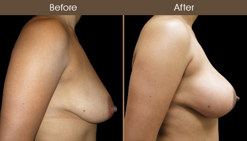 Breast Lift With Breast Implants Before And After