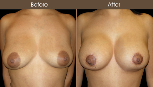 Breast Lift With Breast Implants Before & After
