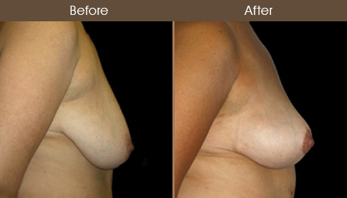 Breast Lift Before And After Right Side Image