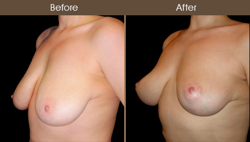 Before & After Breast Lift