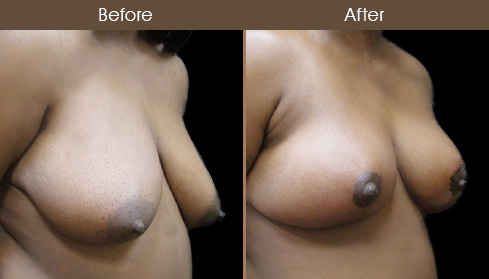 NYC Breast Reduction Results