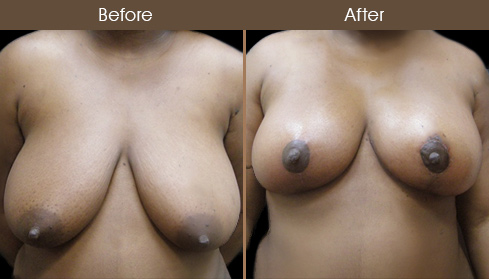 NYC Breast Reduction Before & After