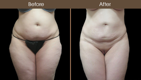 Before & After Lipo Surgery