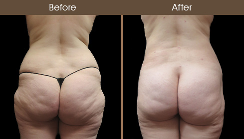 Before & After Liposuction In NYC