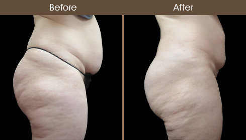 Before And After Liposuction In NYC