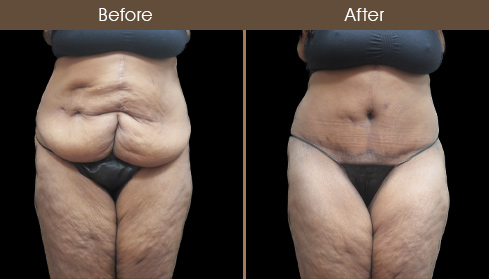 Before And After Abdominoplasty Surgery In New York