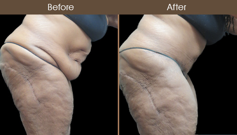 Before And After Tummy Tuck In New York City