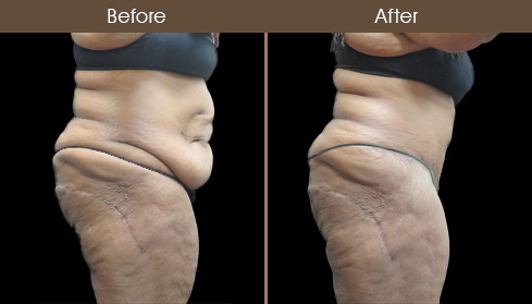 Before & After Abdominoplasty Surgery In New York