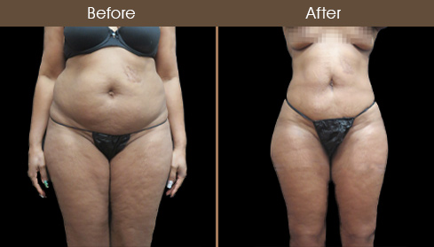 Before And After Liposuction Surgery In NYC