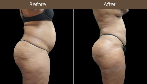 Before & After Liposuction Surgery In NYC