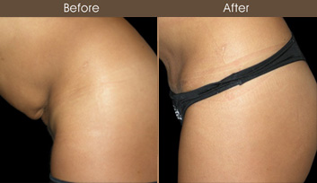 Tummy Tuck Surgery Closeup View
