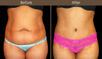 Abdominoplasty Before And After Front Image